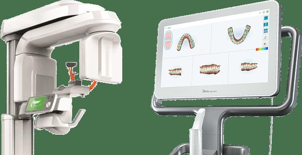iTero Talbot Orthodontics in Citrus Heights and Roseville, CA